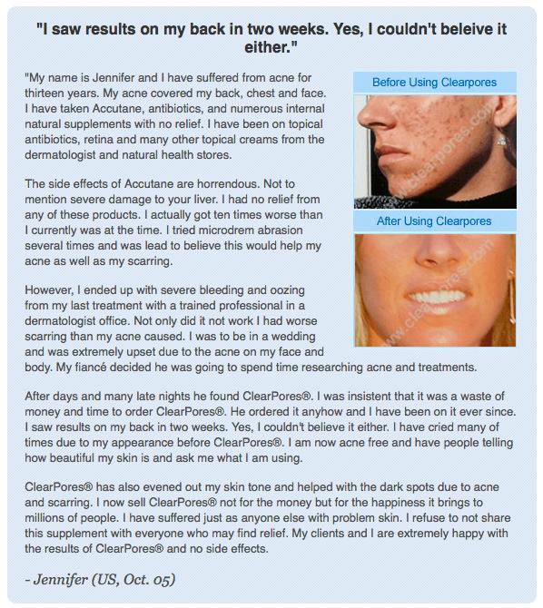 Clearpores Testimonial by Jennifer