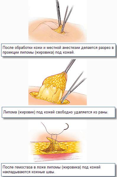Как избавиться от жировика, фото и лечение жировиков