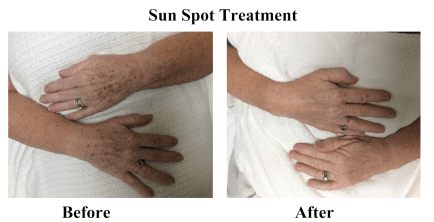 Sun Spot Treatment Before and After