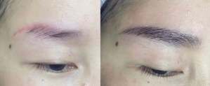 BEFORE AND AFTER FIXING RED INK BROWS