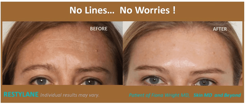 Fresh Skin Care Line Reviews
