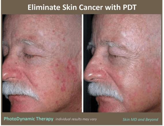 Levulan Blue Light Treatment For Skin Cancer