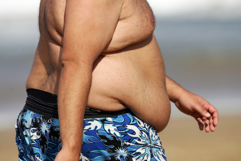 man with excess belly fat