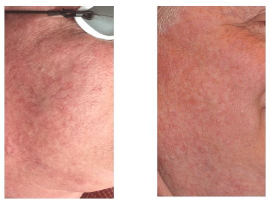 remove-broken-capillaries-denver