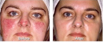 Rosacea - before and after