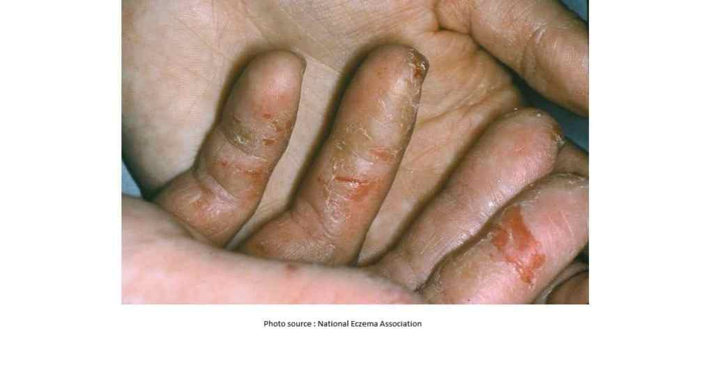 What Causes Hand Blisters? - Skinshare Singapore
