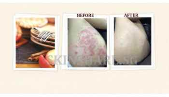 What is Eczema Diet - Skinshare Singapore