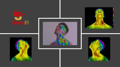 Anatomical thermography