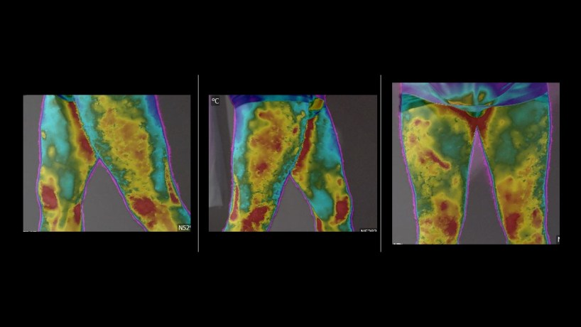 Thermography for sport
