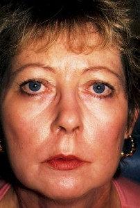 laser resurfacing of the face after