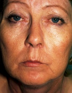 laser resurfacing of the face before