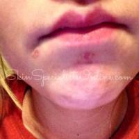 mild acne treatment