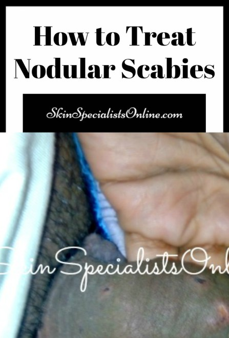 How to treat nodular scabies