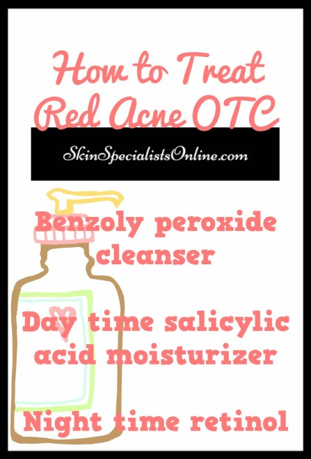 how to treat red acne (inflammatory acne)