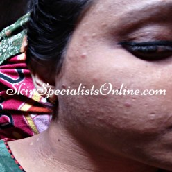 acne and post inflammatory hyper pigmentation