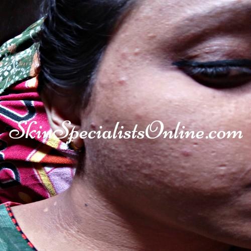 post inflammatory hyper pigmentation