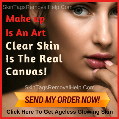 Removing Skin Tags Yourself -Best Seller Of The Week - Skintagsremovalhelp.com