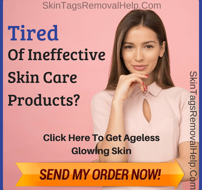 How To Get Rid Of Skin Tag