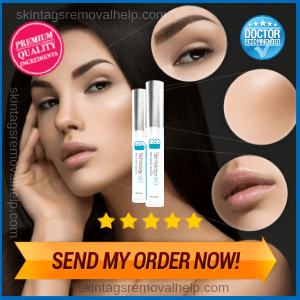 Skintology MD Skin Tag Removal   Reviews, Shark Tank and Cream Ingredients