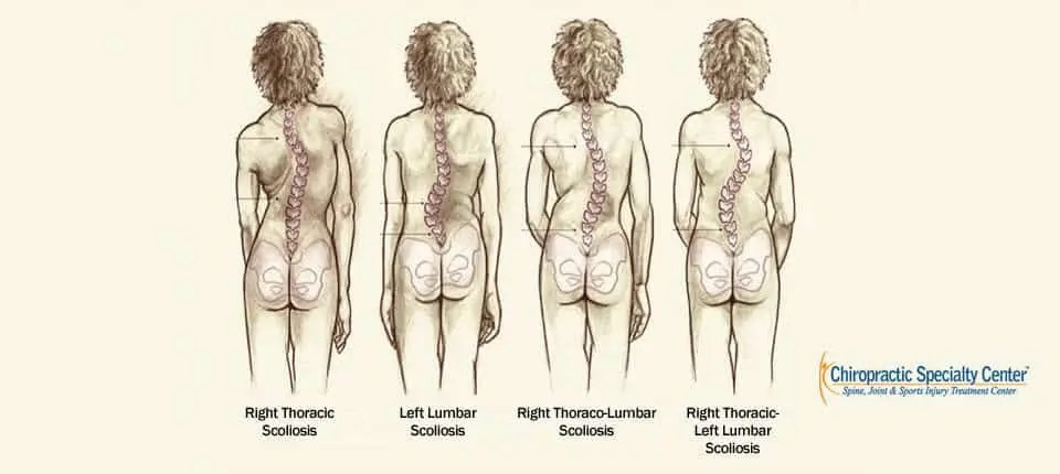 Types of Structural Scoliosis in Malaysia