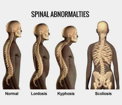The Bottom Line on Lordosis and Scoliosis treatment Malaysia