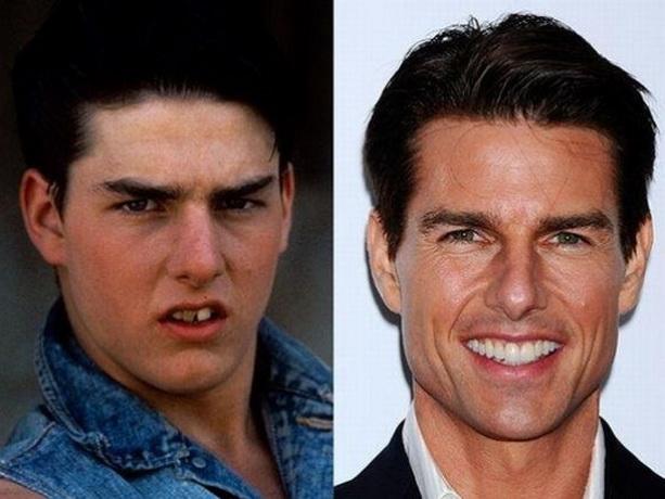 Том Круз до и после
