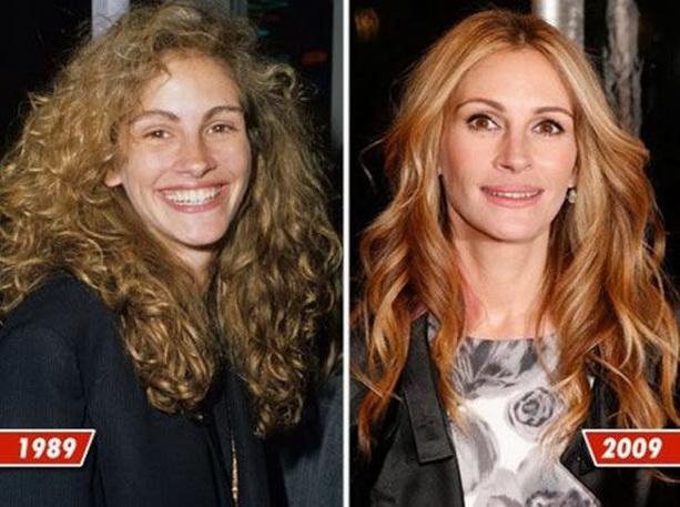 Джулия Робертс до и после