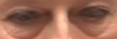 eyes have it.png
