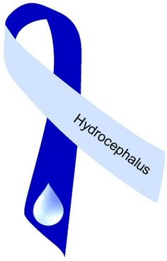 Hydrocephalus…but I'll keep smiling