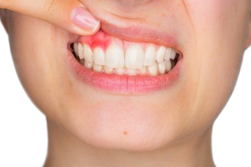 Swollen Gum Can Be Painful: See How to get rid of Swollen Gum Fast