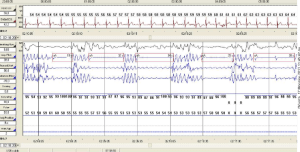 Polysomnography gives yield to a polysomnogram. This is an example of a polysomnogram.