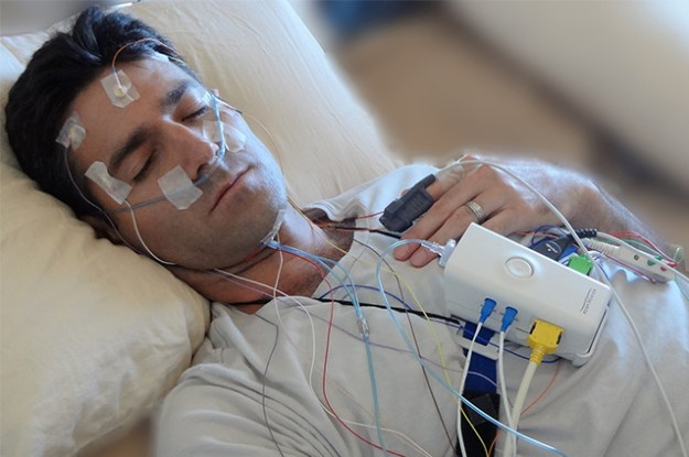 Polysomnography is important in diagnosing sleep deprivation