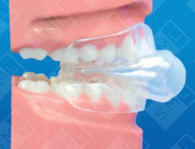 Why Tongue Retaining Devices Are The Best Devices For