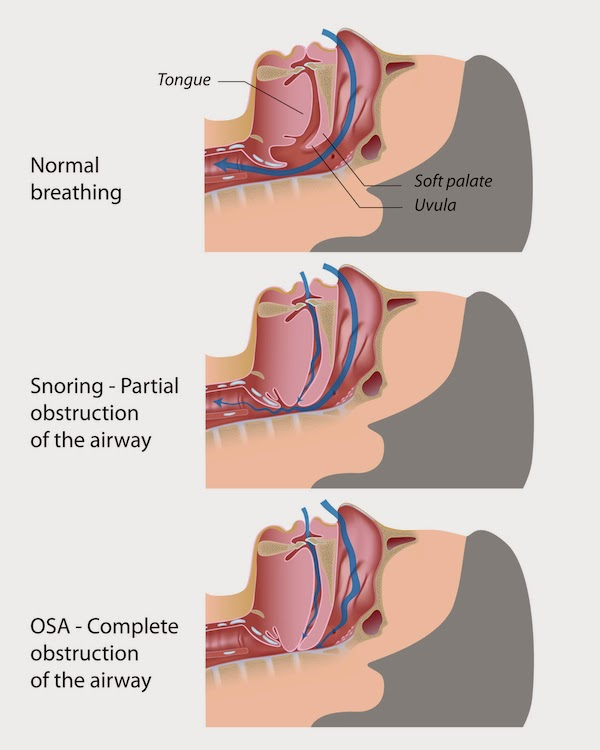 b8f18-obstructive-sleep-apnea2bimage
