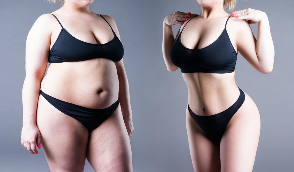 Beneficiile tratamentului chirurgical al obezității