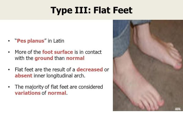 Foot Pathology Trainer's Guide - ppt video online down