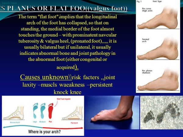 PES PLANUS OR FLAT FOO((valgus foot)) . - ppt video online ...