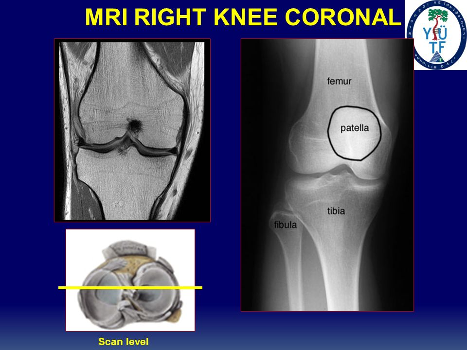 Pcl Posterior Cruciate Ligament Injuries