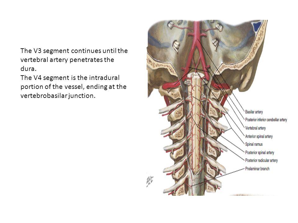 Intradural Vertebral Artery