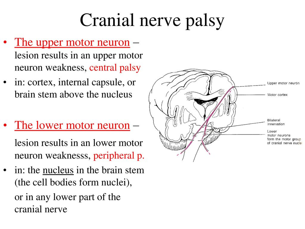 Upper Motor Neuron 7th Nerve Palsy