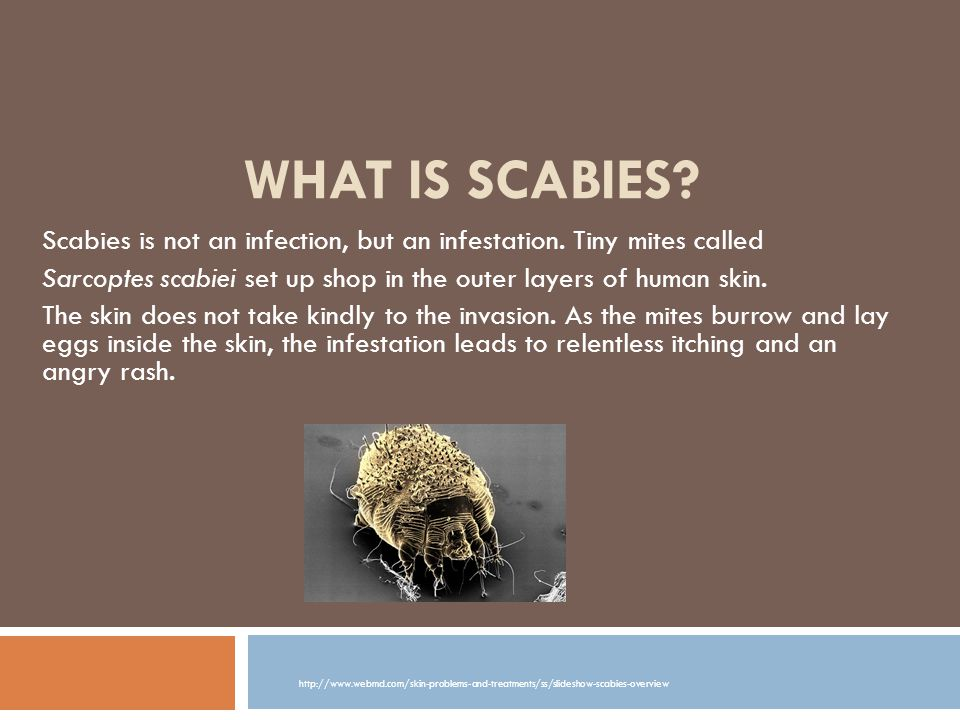 What Is Scabies Scabies Is Not An Infection But An