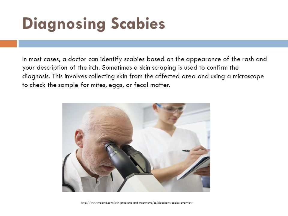 9 Most Effective Home Remedies For Scabies Styles At Life