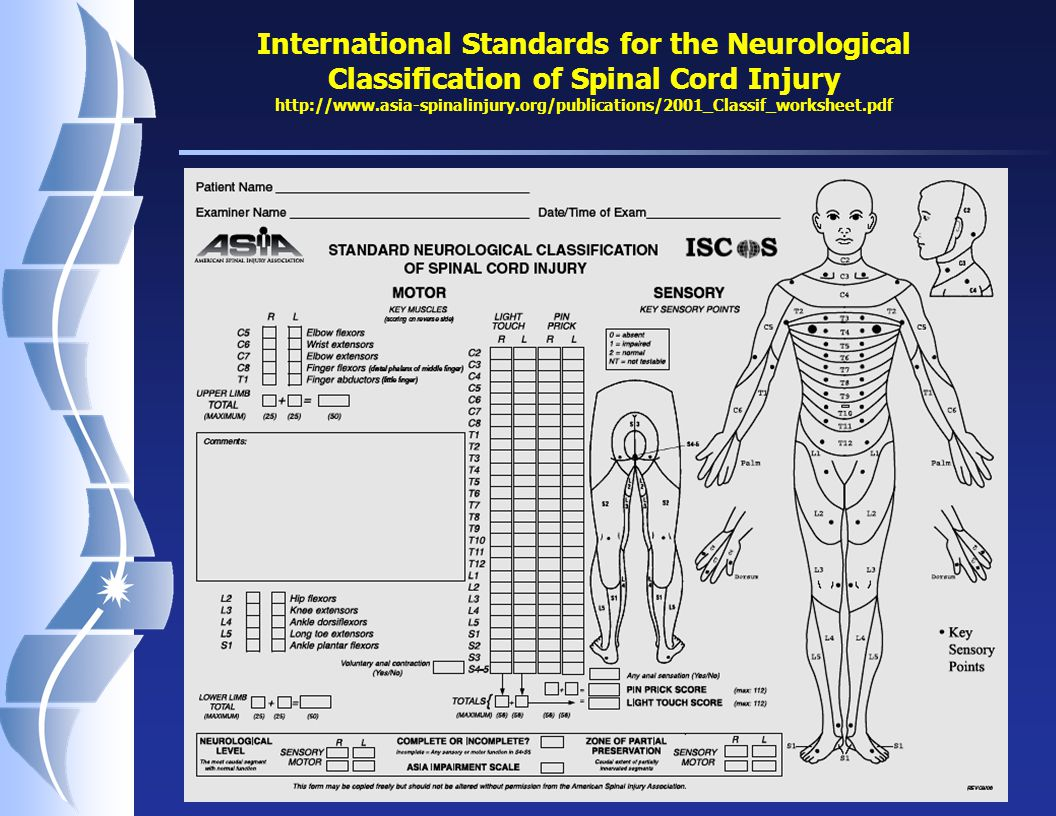 Classification Of Spinal Cord Injuries Pictures To Pin