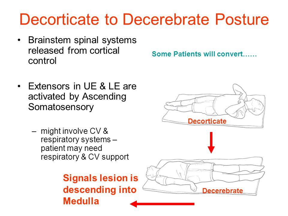 Decorticate And Decerebate Posturing