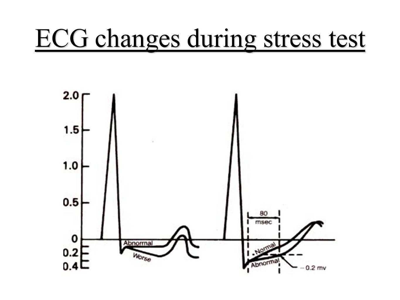 Exercise Stress Electrocardiography