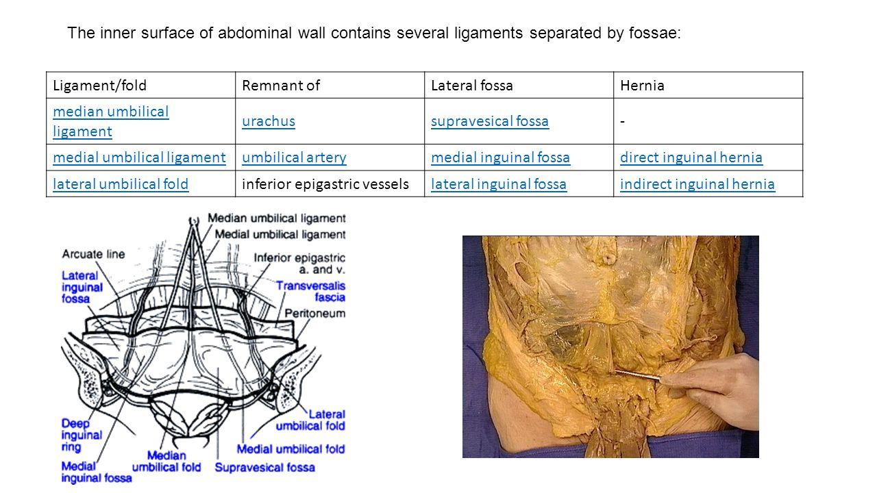 Hernia Direct Indirect Surface Anatomy