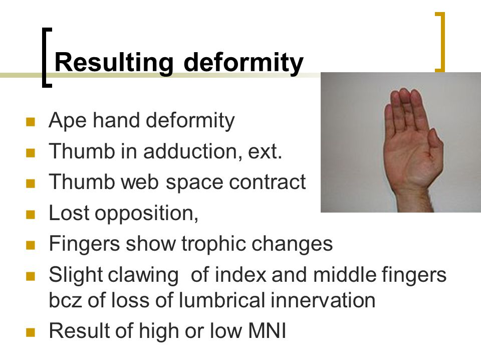 Thumb Muscles Of Lateral Pinch