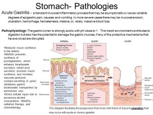 Stomach Anatomy and Pathology  ppt video online download