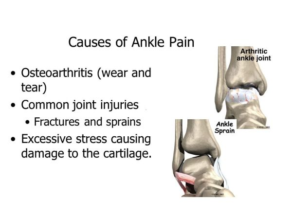 Treatment Options for Severe Ankle Pain - ppt download