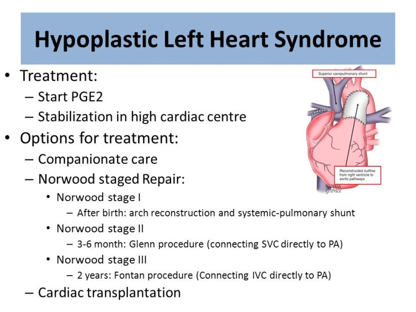 Image result for clinical manifestations of hypoplastic left heart syndrome